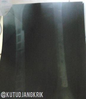 Foto Setelah Operasi Pemasangan Pen